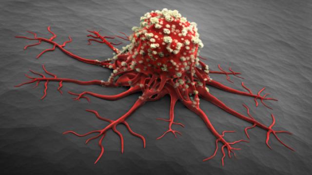 关于癌症的十个小知识