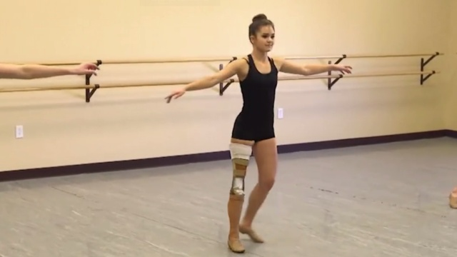 女孩截肢后用脚踝跳舞!超乐观!