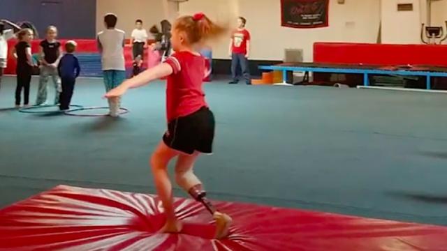 没有右腿的10岁体操女孩
