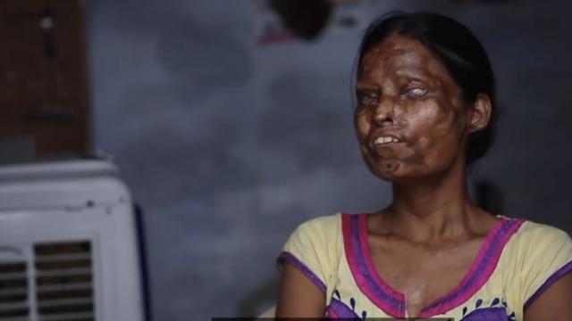 母女被泼酸毁容失明,仍与凶手同住