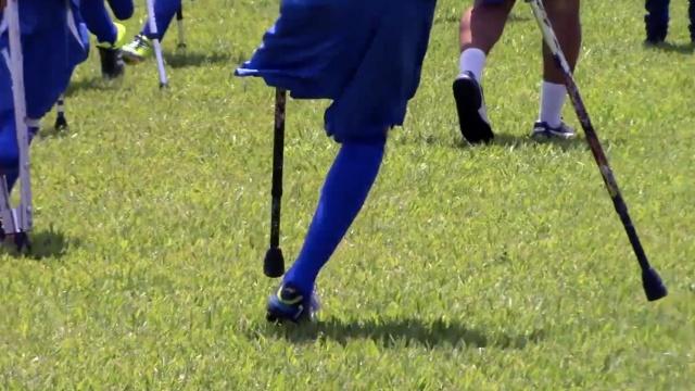 失去一条腿,他们照样能驰骋足球场