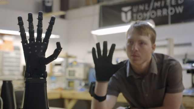 20岁天才少年造机器手臂,免费使用