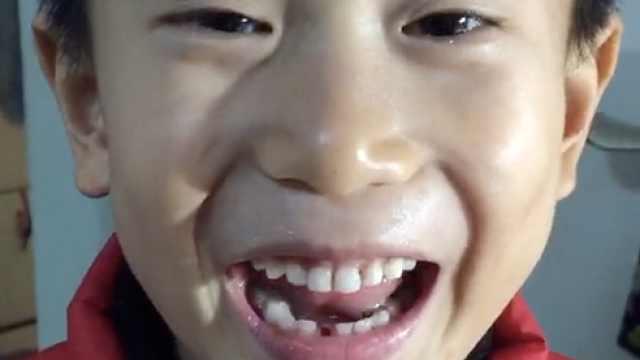 六岁萌娃栓绳拔牙,哭懵后一秒转笑