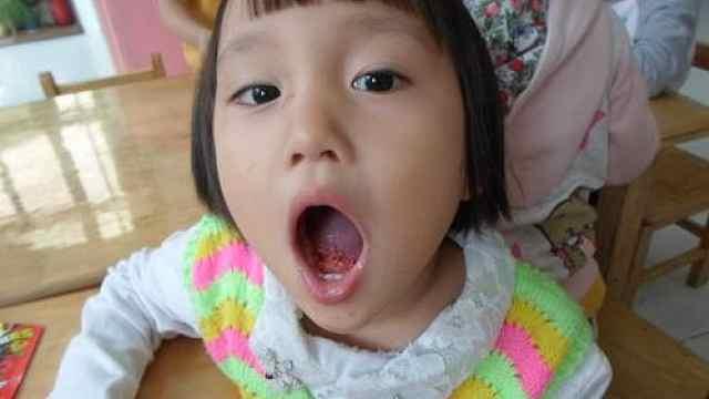 快来了解下舌尖上的跳跳糖吧!