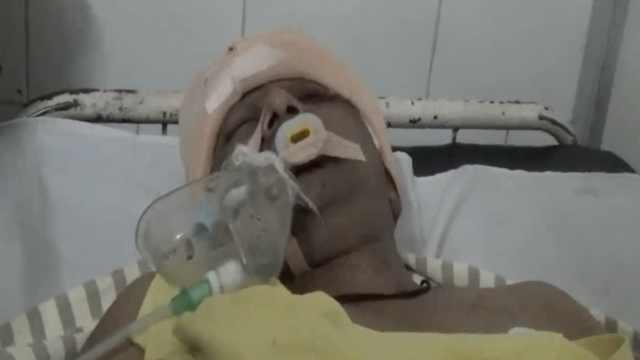 印度男子竟在尸检台上死而复生