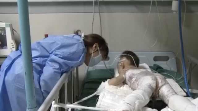 两岁男童掉入开水锅,全身55%烫伤