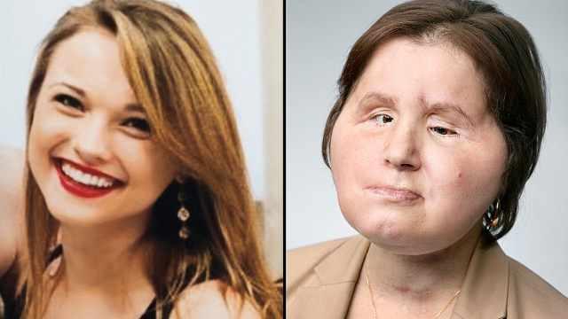 女孩自杀未遂,用面部移植获得新生