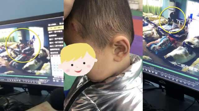 3岁男童欲小便,遭保育老师扇耳光