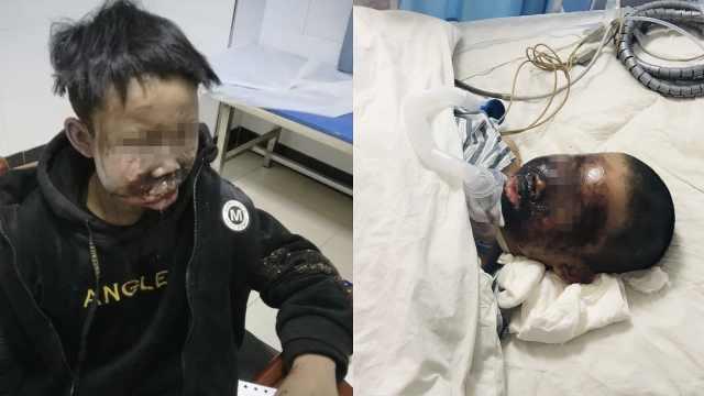 13岁少年燃放鞭炮,被炸得面目全非