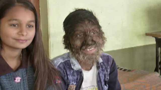 印度毛孩全身长毛,有时呼吸困难