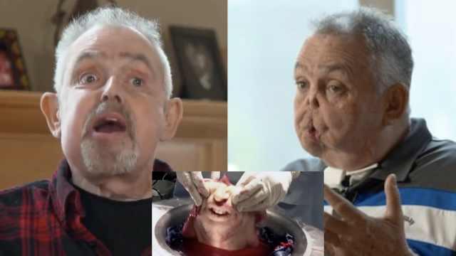 加拿大首例换脸手术,术后合不拢嘴