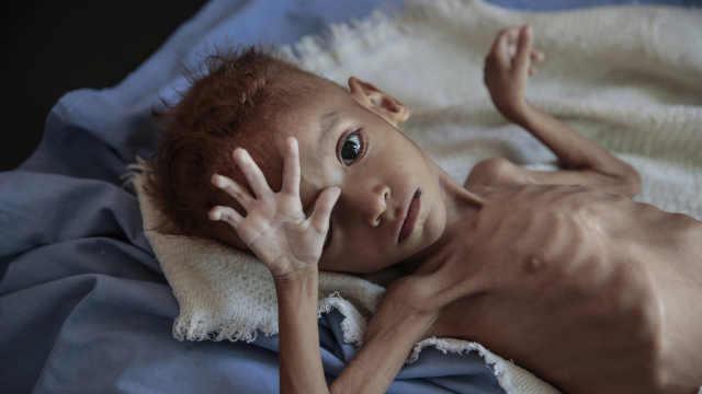 联合国走进中东发现皮包骨儿童遍野