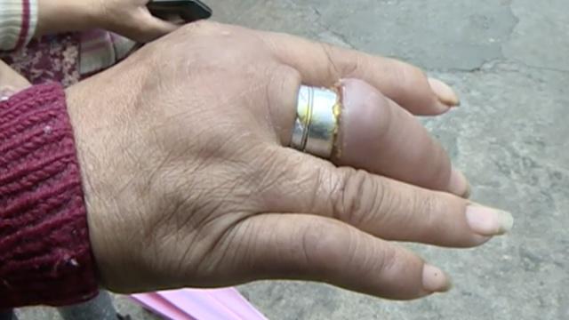 老汉爱美,一手指戴俩戒指险坏死