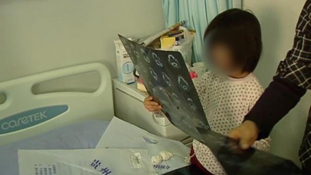6岁女童边吃饭边玩,筷子插入颅内