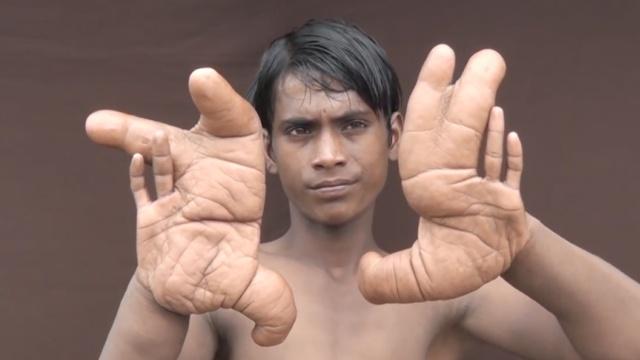 12岁男孩得怪病:手比脸大,走路就疼