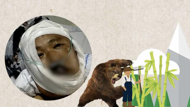 他遭熊袭击咬伤后脑,猛踹黑熊逃生