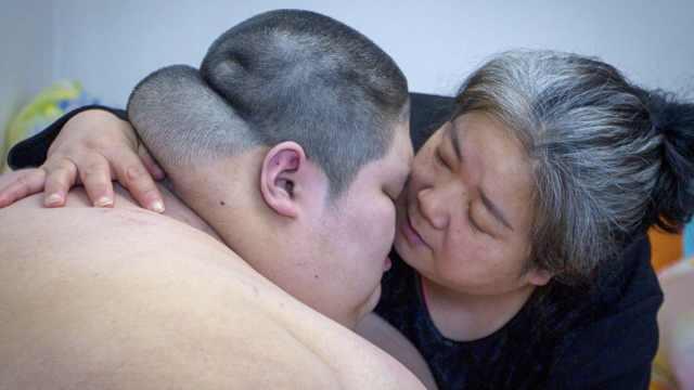 500斤脑瘫儿患病,母:遇不测捐遗体