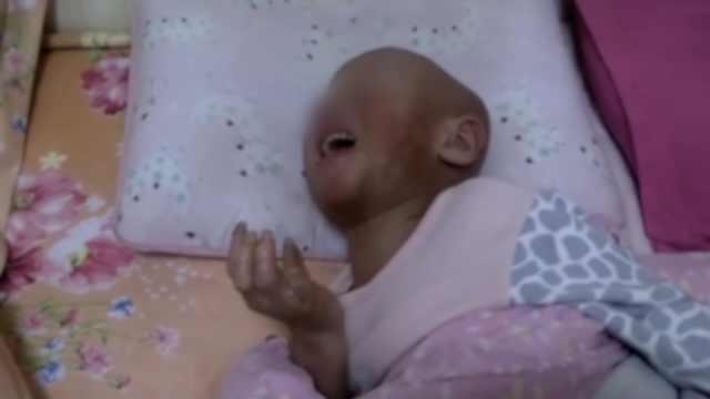 5岁女孩手脚蜕皮溃烂,父母苦寻医