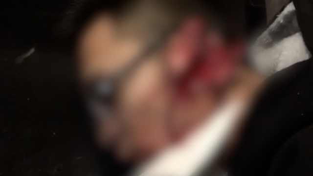 吓!疑微信约架,男子耳朵被砍两半
