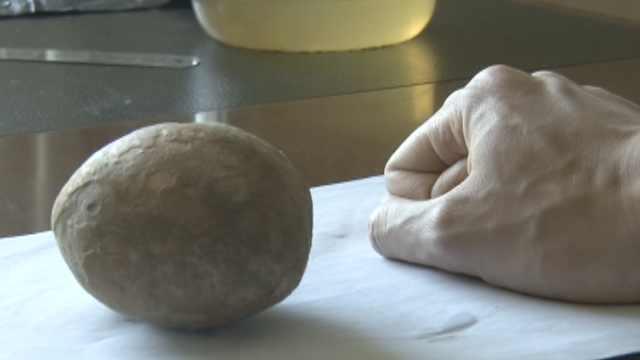 罕见!男子膀胱取出巨型结石,重1斤