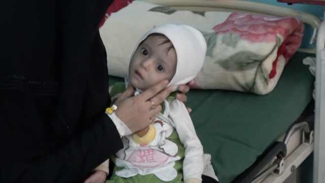 严重饥荒!也门半岁宝宝体重仅10斤