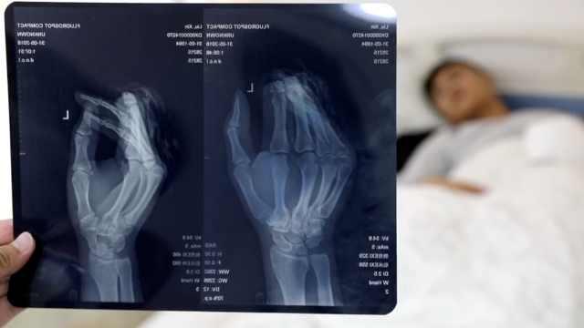 小伙砍猪蹄切掉两指,就医途中遗失
