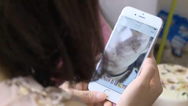 女子花6千激光祛斑,脸肿险毁容