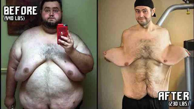 男子为爱减肥暴瘦300磅,可皮还在
