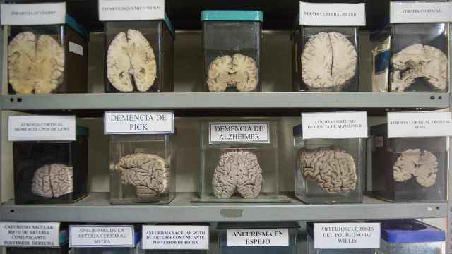 直播:科普医疗,展出3000颗病变人脑