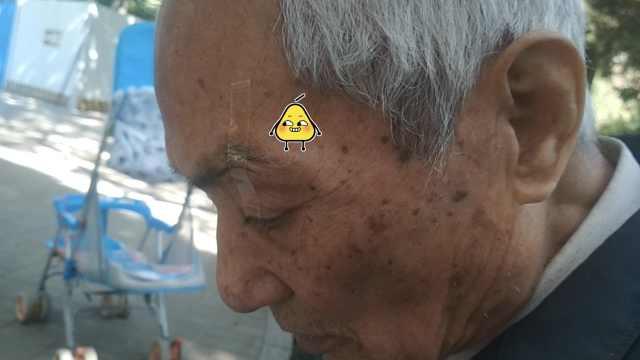 8旬翁眼皮贴胶带看书:防眼皮下垂