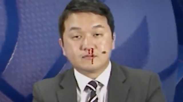 笑到头掉!韩国解说员镜头前流鼻血