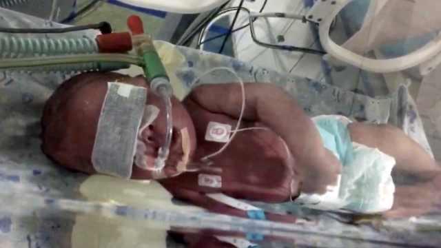 孕妇家中生产剪脐未消毒,婴儿患病