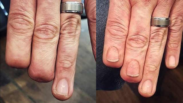 纹身师为半截手指的人纹出逼真指甲