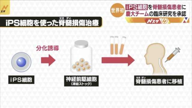 日本批准iPS细胞脊髓损伤临床试验