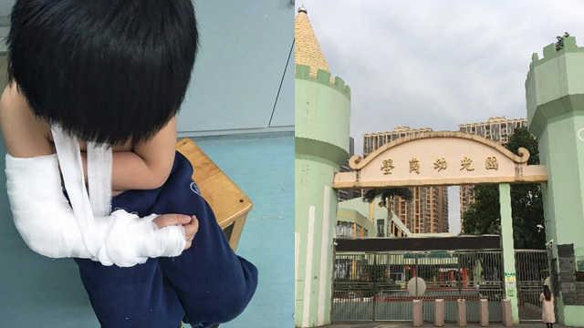 5岁娃幼儿园骨折,家长质疑老师虐童