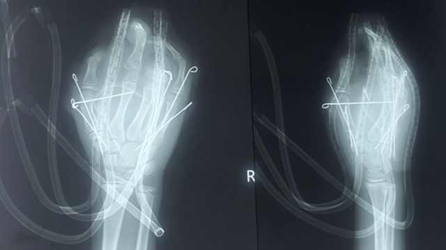 痛心!13岁男孩玩鞭炮炸断5根手指
