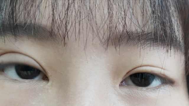 她整形后变大小眼,院方:还在恢复期