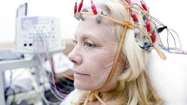 电击改善记忆?70岁老人短暂回20岁