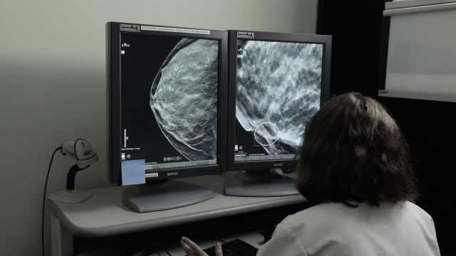 研究:节制饮食能提高乳腺癌存活率