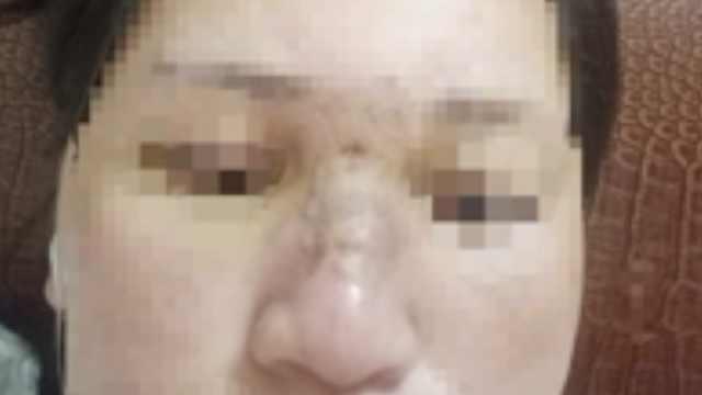 她花1800元打玻尿酸隆鼻,险些失明