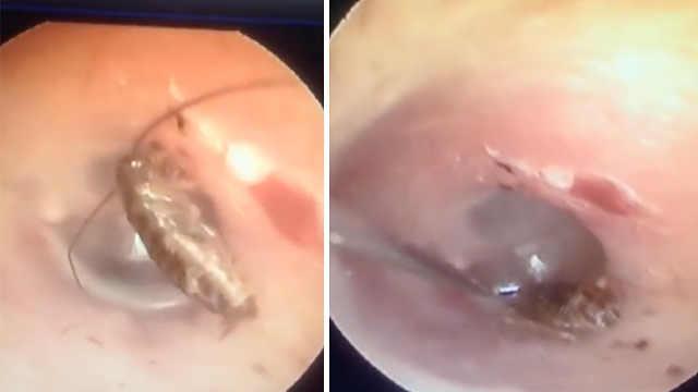 蟑螂爬进耳朵里,医生用小棍掏出