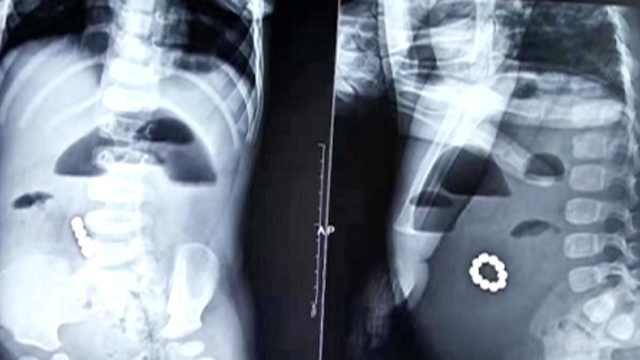 1岁男童吞10颗磁力珠,在腹部连成串