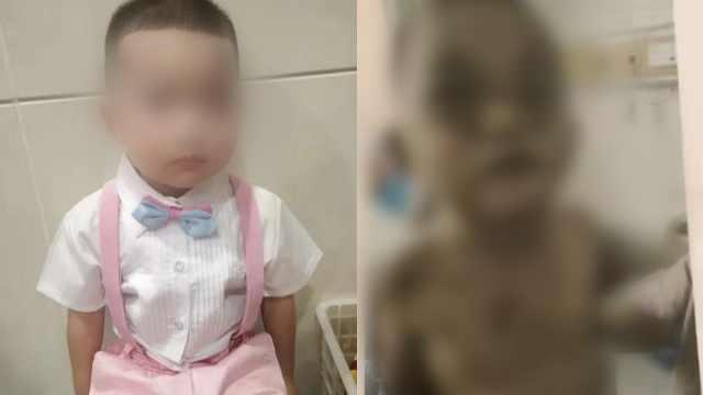 5岁男童遭后妈殴打致死,亲妈哭诉