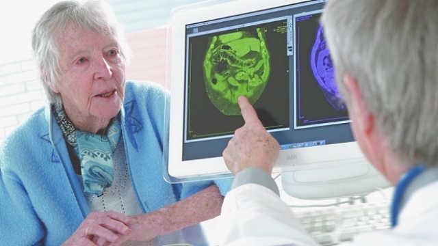 为什么女性比男性更容易得老年痴呆