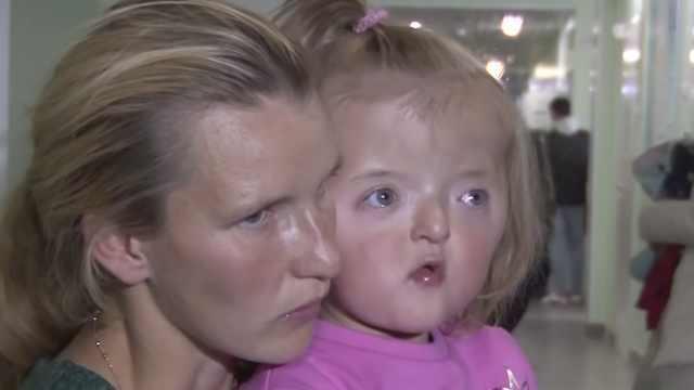 2歲女童因面部畸形遭托兒所拒收
