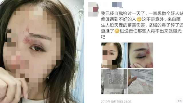 女子拒绝敬酒遭暴打,脸上多处有伤