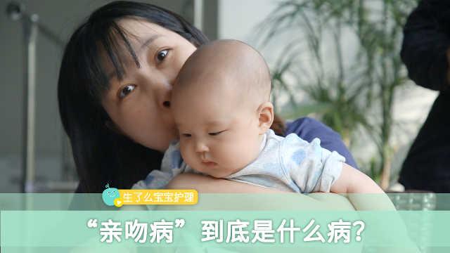 """怎么预防宝宝感染上""""亲吻病""""?"""
