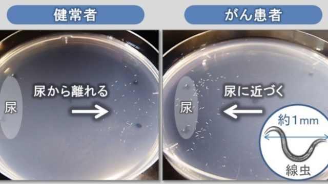 日本企业研发一滴尿测早期癌症技术