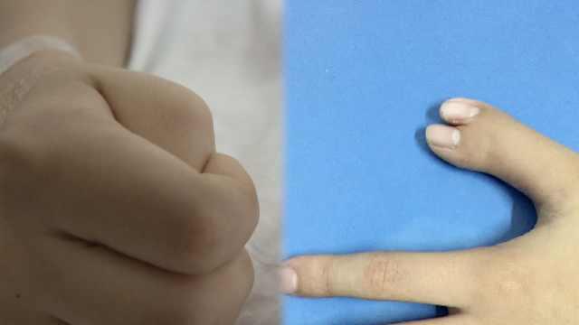 6指男孩將手指藏手心多年,母:自卑