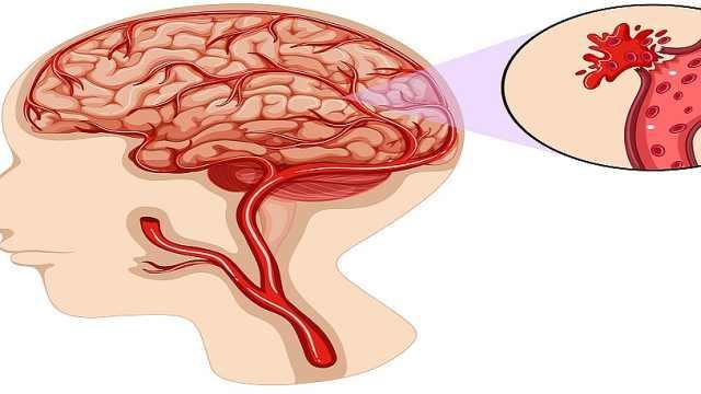 脑出血有哪些原因?
